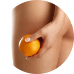 cellulite guide maladie complet