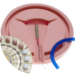 contraception guide complet