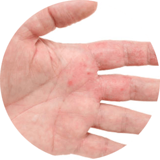 eczema guide maladie complet