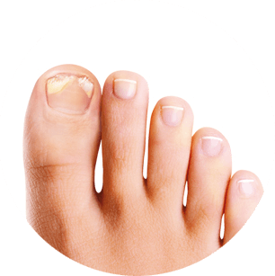 infection fongique de l'ongle guide maladie complet