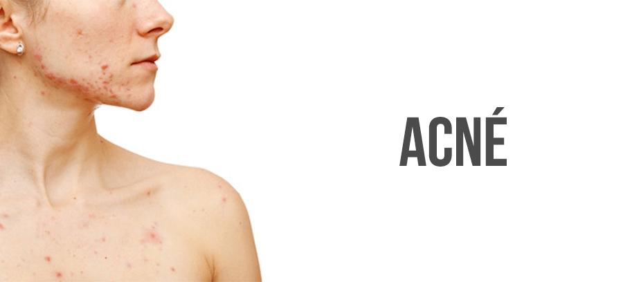 Traitement acné : cause, symptômes et médicaments