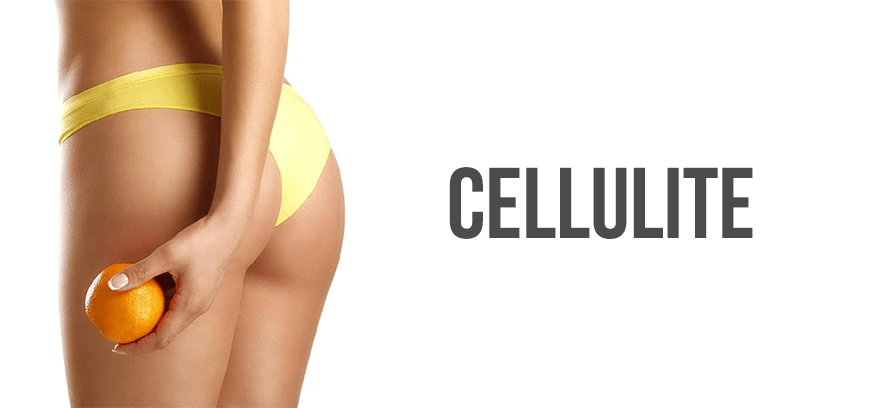 traitement de la cellulite sans ordonnance