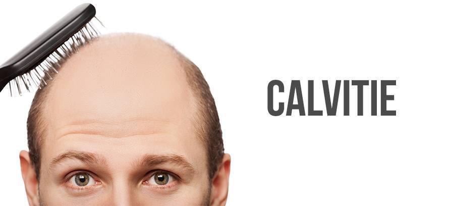 calvitie traitement sans ordonnances