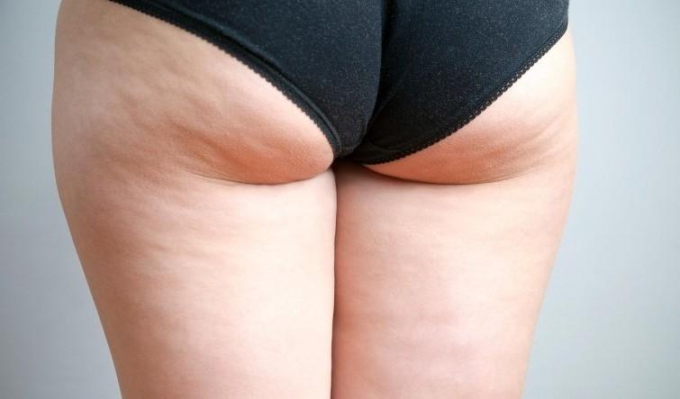 cellulite jambes femme