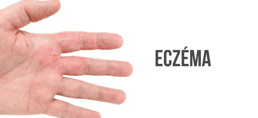 eczéma traitement sans ordonnance
