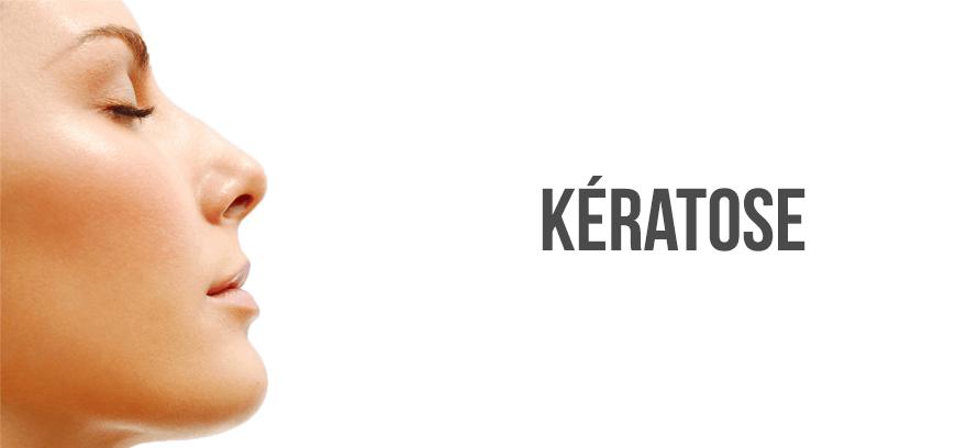 keratose cause danger traitement