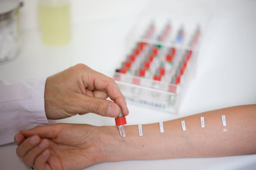 tests cutanés pour diagnostiquer l'allergie au pollen