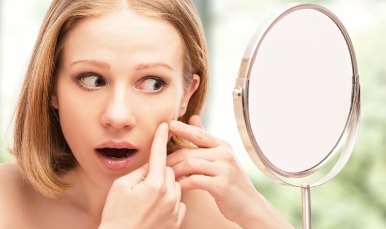 acné, effet secondaire des micropilules