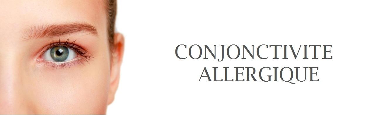 conjonctivite allergique facteurs risque sympt mes et traitement. Black Bedroom Furniture Sets. Home Design Ideas