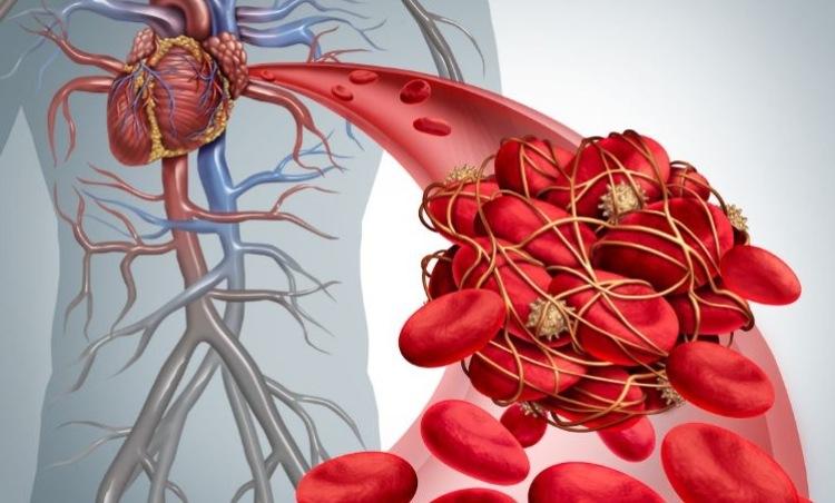 une formation de caillot sanguin