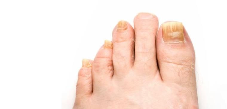 symptômes des mycoses de l'ongle