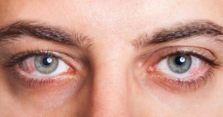 Conjonctivite allergique : facteurs à risque, symptômes et traitement