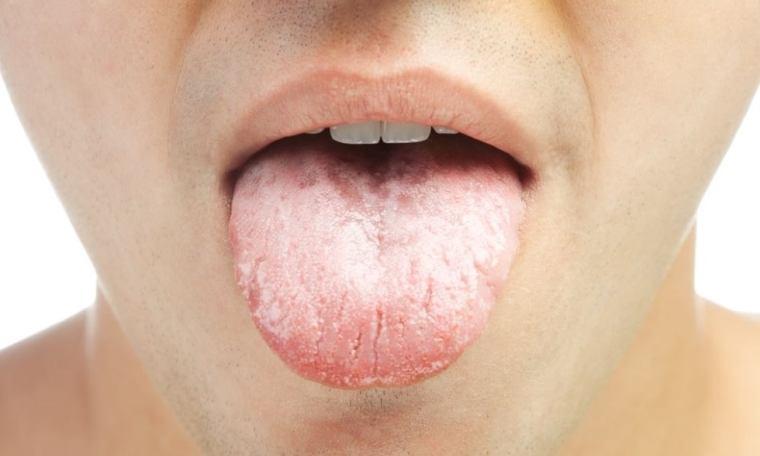 lèvres blanchâtres