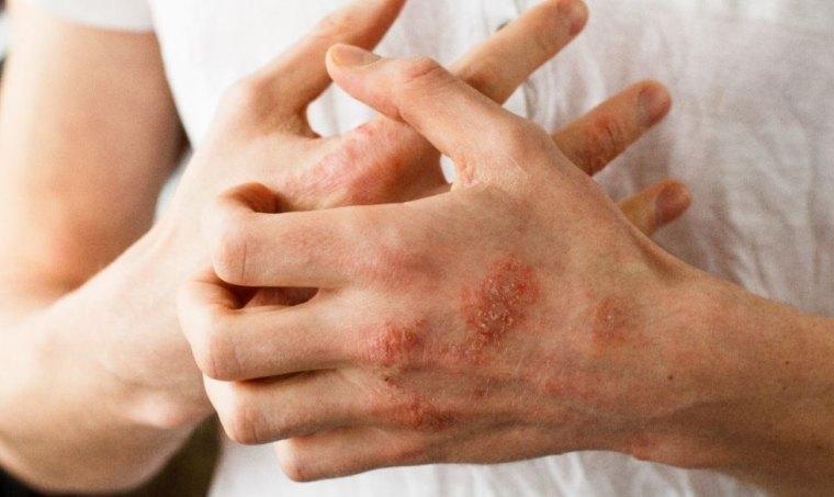 Le psoriasis denfant sur la tête comme traiter