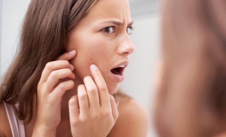 acné, facteur à risque de l'hirsutisme