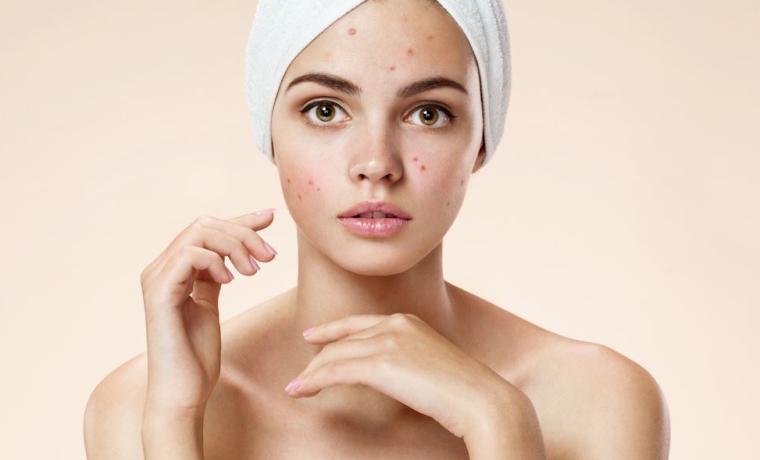Femme atteinte d'un acné
