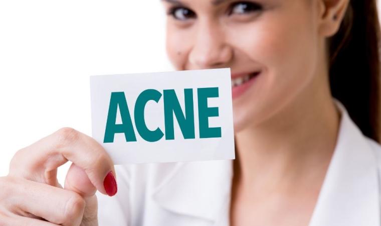 Femme avec un cas d'acné