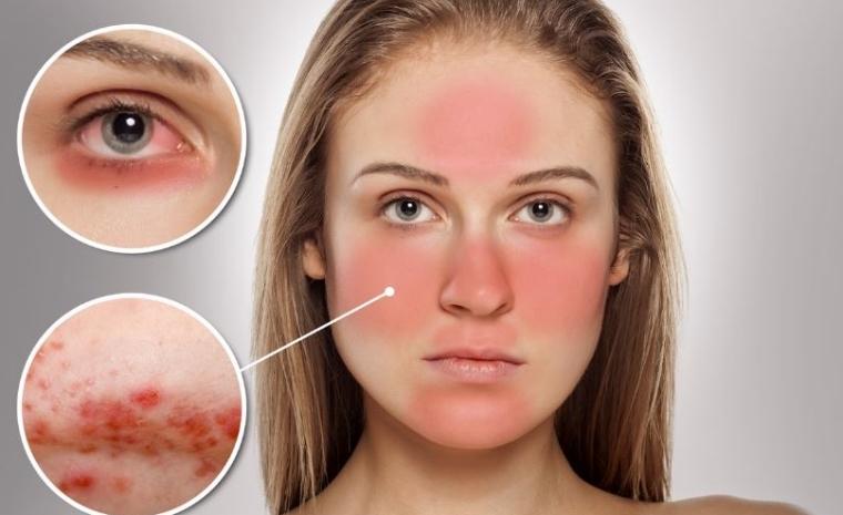 Femme présentant un cas de rosacée